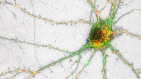 A Potential New Pathway for Parkinson's Disease